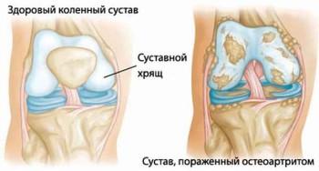 типы и формы коленного артрита