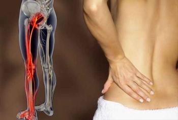 диагностика защемления нерва